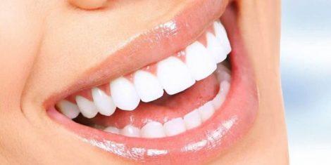 cosmetic-dentist-perth