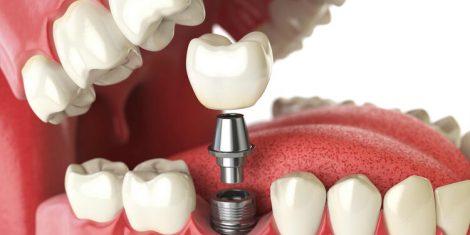 dental implant perth