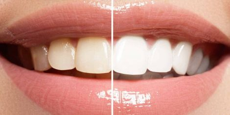 teeth whitening perth